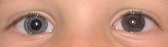 աչքի ծիածանաթաղանթ